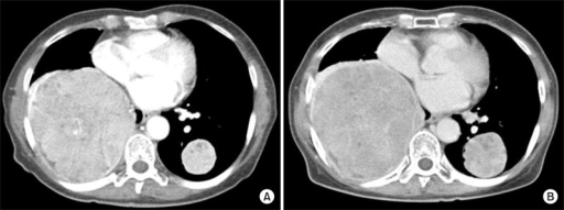 A liver transplant recipient demonstrating vitamin K-associated anti-tumor effect on isolated pulmonary metastasis. A 58 year-old female recipient had isolated lung metastasis 18 months after transplantation, thus sorafenib and vitamin K were administered for 30 months. (A) Since lung mass progressed slowly, sorafenib was discontinued due to disease progression and only vitamin K was administered for more than 12 months. (B) The patient is currently doing well without any serious symptom despite very slow tumor progression.