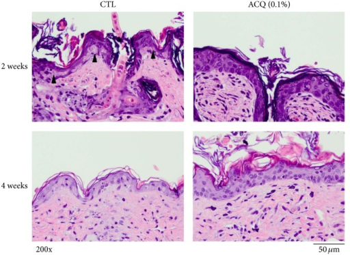 Protective effects by ACQ against UV irradiation. Control mice and ACQ fed mice (2 and 4 weeks) were irradiated with 600 mJ/cm2 of UVB. In control mice, epidermis became thinner and apoptotic cells were observed. But in ACQ fed mice, epidermis became thicker and severe damage was not observed. Experiment was repeated 2 times and representative data is shown (×200, scale bar is 50 μM).
