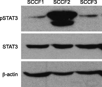 Activation of STAT3 in feline OSCC cell lines. Protein lysates were generated from the three untreated cell lines, separated by SDS-PAGE and Western blotting for pSTAT3 (Y705), STAT3 and β-actin was performed