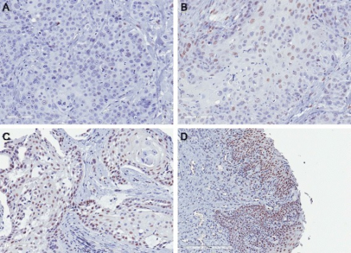 Immunohistochemistry for pSTAT3 in primary feline OSCC tumor samples. Immunohistochemistry was performed for pSTAT3 using a tissue microarray of feline OSCC tumor samples. Signal intensity and percent positivity were scored; these scores were added to generate a total score. Examples of no (a), mild (b) and moderate (c) signal intensity are shown (20X). d pSTAT3 immunoreactivity was also observed in adjacent gingiva in 4 OSCC samples (10X)