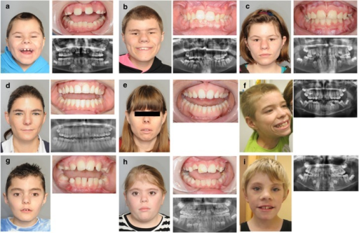 Clinical, intra-oral photographs and OPGs of three patients from family 1 (a–c), patient 4 (d), 6 (e), 2 (f), 8 (g), 9 (h) and 3 (i). All patients show macrodontia of upper central incisors. Patient 1D (a) shows macrodontia of central upper incisors and hypodontia of four permanent teeth. Patient 1B (b) shows macrodontia of four upper incisors, as well as talon cusps and dental crowding. Patient 1C (c) shows macrodontia of four upper incisors and hypodontia of four permanent teeth. Patients 4 and 6 (d and e) have no dental abnormalities except for macrodontia of upper central incisors (with a mesiodistal width ≥9.7 mm in both patients). Patient 2 (f) has macrodontia of the central upper incisors and talon cusps. Patient 8 (g) has rather large, mesially inclined central incisors and premature loss of the upper deciduous canines most probably due to crowding. Patient 9 (h) has macrodontia of upper central incisors and enamel defects. Dental anomalies of patient 3 (i) consist of macrodontia of four upper incisors and four lower incisors, as well as hypodontia of four premolars.