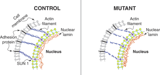 Hypothesis on the role of defective lamin in altering cell adhesion behavior.Speculative cartoon underlying the potential role of mutated LMNA in cell adhesion properties. As recently reported42, we hypothesized that lamin mutant cells cause altered actin dynamics and cytoskeletal actin polymerization. The defective nuclear-cytoskeletal connection may lead to adhesion proteins dysfunction, and ultimately to defective adhesion-detachment properties in mutant cells.