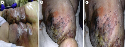 a Lower extremities of the patient. The morbid obesity and the lymphedema are evident. Also noted are some pressure ulcers in the posterior aspect of the legs with signs of infection. b Multiple hemorrhagic and elevated purple-black lesions as well as multiple small satellite lesions in the lower extremity. c Close-up of the multiple purple-black lesions of the lower extremity, with hemorrhagic characteristics and signs of infection.