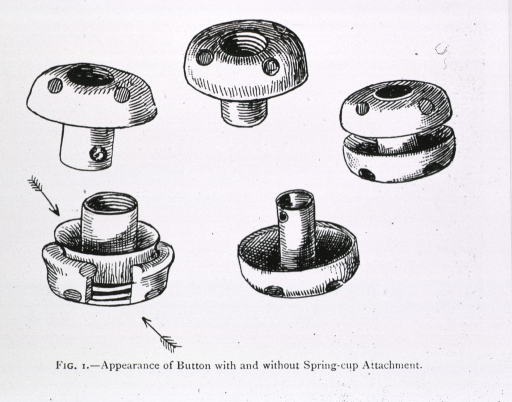 <p>Appearance of Murphy Button with and without spring-cup attachment.</p>