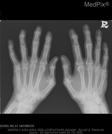 Anteroposterior radiograph of the hands and wrists shows symmetric joint space loss in the distal interphalangeal joints and proximal interphalangeal joints bilaterally.  Erosions involving the metacarpal heads and fluffy erosions involving the ulnar styloid.  Normal bone mineralization and no remarkable soft tissue changes.