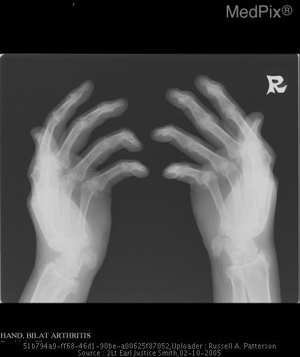 Oblique radiograph of the hands and wrists shows symmetric joint space loss in the distal interphalangeal joints and proximal interphalangeal joints bilaterally.  Erosions involving the metacarpal heads and fluffy erosions involving the ulnar styloid.  Erosion of the pisiforms bilaterally.  Normal bone mineralization and no remarkable soft tissue changes.