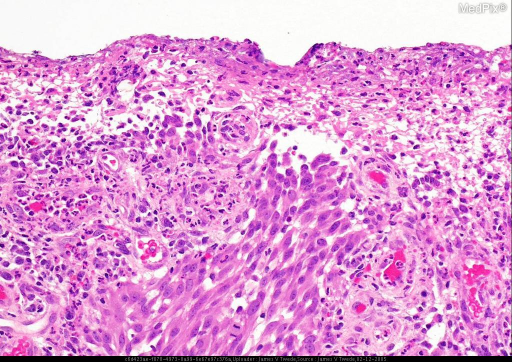 Histopathology: The biopsy shows an ulcerated, dense, dermal spindle cell tumor with numerous mitoses. Immunohistochemical studies: S100 positive; CD68, keratin and actin negative.