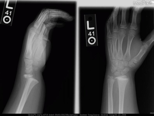 Fracture through the physis of the distal radius with dorsal displacment of the distal fracture and associated soft tissue swelling.