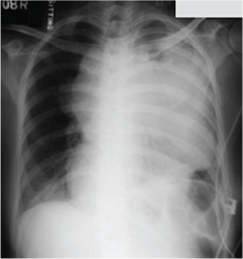 Chest X-ray was taken with abdominal shield. There was a huge mass occupying the left chest; trachea is deviated to the right. The mass caused loss of volume in left lung and elevated left hemidiaphragm.