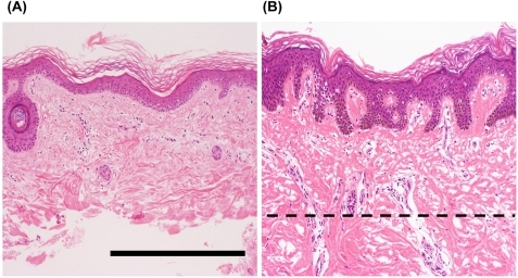 Representative histological features of the skin from patients with Werner syndrome (WS)Representative images of skin specimens from WS patients, stained with hematoxylin and eosin. The left panel (A) shows a sample of skin after removal of dermal tissue with a scalpel, and the right panel (B) shows a sample before such treatment. Dashed line indicates the treatment border. Figures A and B show microscopic views of skin from the ankle of a 43-year-old man (WS-2) and the lower leg of a 41-year-old man (WS-7), respectively. Remarkable atrophy of the epidermis and dermis is evident. Mild hyperkeratosis, mild dermal hyalinization, and atrophy of the skin appendages (hair follicles) are present in both cases, with marked flattening of the rete ridges in (A). No marked inflammatory cell infiltration is evident in either case. Scale bar, 50 μm.