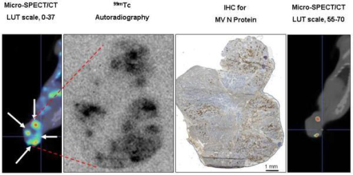 Sensitivity of Pinhole Micro-SPECT/CT for Detection of Separate Intratumoral Foci of MV-NIS Infection. A, Control BxPC-3 tumors (without MV-NIS infection) showed background 99mTcO4 localization (maximal pixel intensity, 37). A threshold 1.5-fold higher than the maximal background intensity (threshold value, 56) was applied to avoid false-positives. Note that the threshold-adjusted image on the right no longer shows background radioactivity. B, Example of a tumor from a mouse euthanized 4 days after MV-NIS injection. Far left panel, Coronal micro-SPECT/CT image. Arrows indicate sites of tumor injection. Middle left panel, Autoradiogram. Middle right panel, IHC stain of the same tumor section. Far right panel, Threshold-adjusted micro-SPECT/CT image. The in vivo micro-SPECT/CT and ex vivo autoradiography and IHC showed excellent spatial correlation. Note that 2 of the 4 injection points (seen as regions of high intensity on micro-SPECT/CT, far left panel) had radionuclide levels exceeding the 1.5-fold background threshold (far right panel). C, IHC tumor section shows the 4 injection zones (4.5-mm circles), which corresponded to 3 times the full-width, half-maximal spatial resolution of the imaging equipment. Quantitative IHC was used to calculate the percent of infected BxPC-3 cells in injection zones 1 and 4. The same experiment on a total of 7 injection sites from 5 tumors revealed a mean of 12.85%+/−1.7 % infected BxPC-3 cells per injection site. IHC denotes immunohistochemical stain; LUT, lookup table; SPECT/CT, single-photon emission computed tomography/computed tomography; MV, measles virus; MV-NIS, measles virus expressing sodium iodide symporter.
