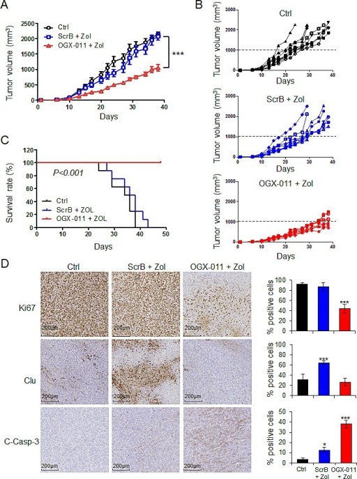 OGX-011 potentiates ZOL activity in MNNG/HOS osteosarcoma xenograft modelMice were treated twice a week with 50μg/kg ZOL and 15mg/kg OGX-011 starting when tumors were palpable as described in M&M. The mean tumor volume (A) and individual tumor volume (B) were compared between the 3 groups ± SEM (n=8). ***, p<0.001. C, in Kaplan-Meier curve, cancer-specific survival was compared between the 3 groups over a 46-d period. ***, p<0.001. D, tumors were collected and CLU, Ki67, and cleaved-caspase-3 were evaluated by immunohistochemical analysis. Specimens were scored and estimated in percentage of positive cells. The control group corresponds to the mice bearing tumor that did not receive any treatment. This group only received vehicle. * p<0.05; *** p<0.001.