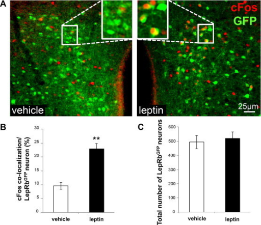 DMH/DHA LepRb neurons are activated by leptin. A. Representative images of LepRbGFP reporter mice three hours after acute i.p. vehicle (left panel, n = 3) or leptin (5 mg/kg body weight, right panel, n = 4) treatment. Sections were stained for cFos as a surrogate for neuronal activation and GFP as a surrogate for LepRb neurons. B. Percentage of LepRbGFP neurons that are co-localized with cFos within the DMH/DHA. **pt-test < 0.01. C. Total number of LepRbGFP neurons in the DMH/DHA.