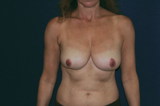 Before NSM: vertical scars from previous right lumpectomy and bilateral mastopexy are noted.