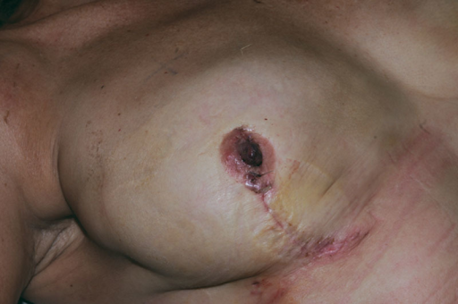 Closure of the right nipple after tissue removal: the nipple has been reapproximated with good cosmetics and nipple viability noted.