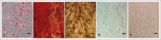 Differentiation of ADSCs visualised by staining techniques.(A) Intracellular lipid globules of adipogenically differentiated ADSCs stained positively by Oil Red O (B) Calcium deposition of osteogenically differentiated ADSCs stained positively by Alizarin Red, (C) Mineralization of osteogenically differentiated ADSCs stained positively by Von Kossa, (D) Glycosaminoglycan deposition of chondrogenically differentiated ADSCs stained positively by Alcian blue, and (E) Fibroblast morphology of undifferentiated ADSCs. Scale bar = 10μM.