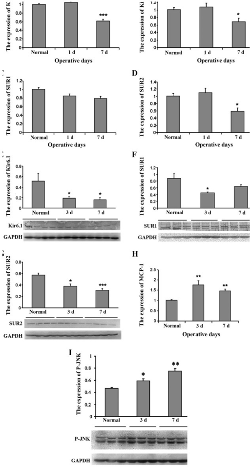 Decrease of KATP channel subunits and increase of MCP-1 and JNK expression after SMIR in the spinal cord KATP channel subunits. (A–D) mRNA expression of KATP channel subunits. (E–G) Protein expression of KATP channel subunits. (H) mRNA expression of MCP-1. (I) Protein expression of JNK. *P≤0.05, **P≤0.01, ***P≤0.001 vs. normal. KATP, adenosine triphosphate-sensitive potassium; MCP-1, monocyte chemoattractant protein-1; SMIR, skin/muscle incision and retraction.