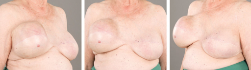 Preoperative photographs show the enlargement and tightness of the right reconstructed breast compared with the left reconstructed breast.