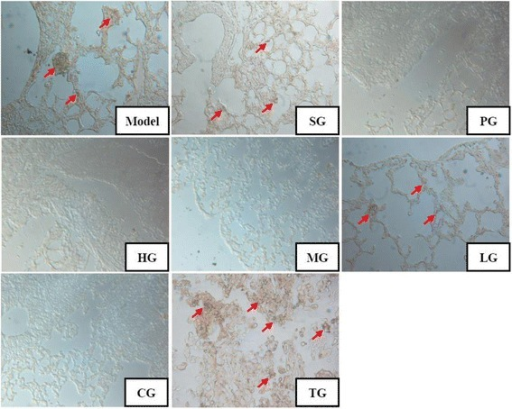 Effects of CFCT on immunohistochemistry in lung tissue from melanoma B16F10-bearing C57BL/6 mice. Light micrograph of HMB45-positive cells (original magnification × 400) stained by the anti-mouse HMB45 mouse monoclonal antibody. Red arrows denote HMB45 protein. TG: solid tumor tissue of model group. Other groups as described in Fig. 2