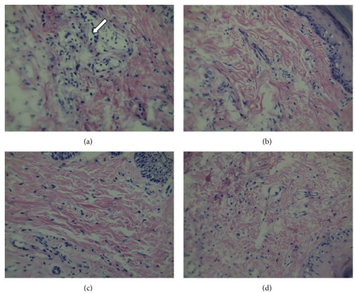 Effects of escin after oral administration on histological pathology of the edema paws in rats. Tissues of the right-hind paw were stained with hematoxylin and eosin (H-E). (a) Vehicle group; (b) Dex group; (c) escin (i.v., 1.8 mg/kg) group; (d) escin (p.o., 10 mg/kg) group. Arrows indicate the inflammatory cells (n = 3 for each group, magnification, 400x; Olympus BX41, Japan).