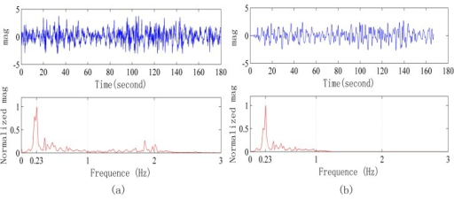 Signals collected in a strong interference environment when the radar is 3 m away from the human body. (a) Original signal waveform and frequency spectrum; (b) Signal after FIR filter processing and its frequency spectrum.