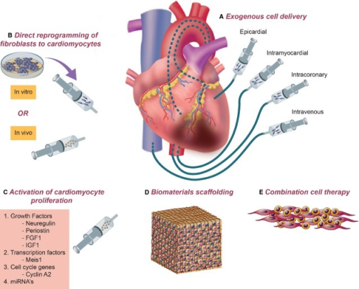 A combined approach for amelioration of injury and rejuvenation of cardiac tissue. Successful cardiac regeneration will likely necessitate a combination of therapeutic approaches. (A) Delivery of exogenous cells has been demonstrated via epicardial, intramyocardial (endocardial), intracoronary and intravenous routes. (B) Fibroblasts directly reprogrammed into cardiomyocytes either in vitro or in vivo can potentially serve as an abundant source of cells for cardiac regeneration. (C) Stimulation of native cardiomyocyte proliferation may be possible using a number of protein- and nucleic acid- based factors. Delivery of multiple cell types (E) along with delivery of biomaterials-based scaffolding (D) may be necessary for optimal cell engraftment and tissue regeneration.