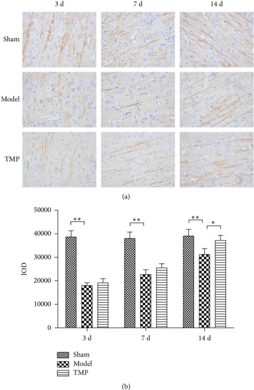The expression levels of MAP-2 within peri-infarct area of three groups in sham, model, and TMP groups at 3 d, 7 d, and 14 d after MCAO. (a) Immunohistochemical staining of three groups (400x). (b) MAP-2 levels of three groups through measuring the integral optical density (IOD). Data were presented as mean ± standard deviation (n = 6). *P < 0.01 and **P < 0.001.