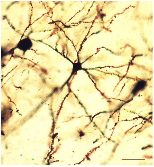 A representative dendritic morphology of layer V pyramidal cells of rats (Golgi-Cox staining). Photomicrograph was viewed at ×200 magnification. Bar = 50 μm.