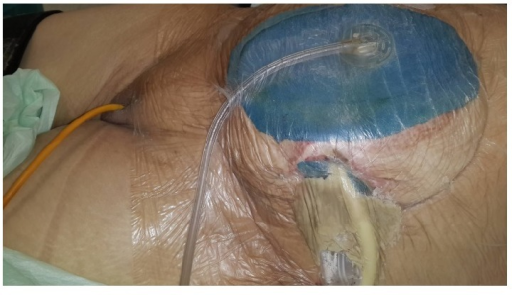 Glycerin-impregnated gauze ostomy opening, pesser drainage tube, and Flexi-Seal with applied abdominal NPT are seen.