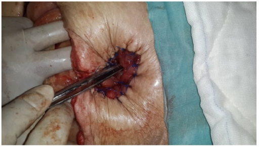 Performed ostomy by inverting skin is seen.
