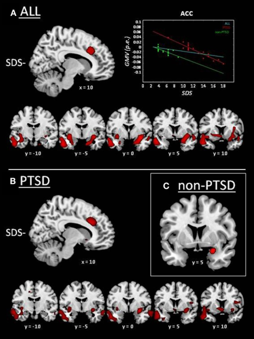 Whole-brain results of VBM analyses on MRI data: correlation between GMV and sleep-disturbances score (SDS; cf. Table 3). GMV reductions associated with higher sleep disturbances (SDS−) are displayed in red. (A) Whole group of subjects (i.e., irrespective of PTSD diagnosis; n = 37). The scatter plot displays GMV as a function of SDS in the whole group (cyan line; r = −0.51; p = 0.001), and separately for PTSD (red line/diamonds; r = −0.94; p < 0.001) and non-PTSD (green line/dots; r = −0.73; p = 0.001), expressed as parameter estimates (p.e.; values extracted at peak in the anterior cingulate cortex). (B) PTSD group. (C) Non-PTSD group.