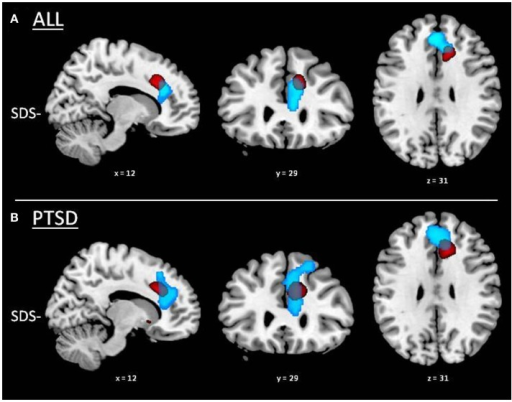 Partial overlap between VBM and SPECT results in the anterior cingulate cortex. GMV reductions associated with higher sleep disturbances (SDS−) are displayed in red and rCBF decrease with higher sleep disturbances (SDS−) in light blue. (A) Whole group of subjects (i.e., irrespective of PTSD diagnosis; n = 37). (B) PTSD group.