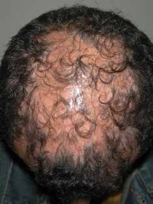 Patient with fibrosing alopecia in a pattern distribution showing confluentalopecia plaques in the central region of the scalp
