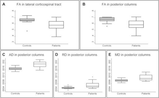 Quantification of tract-specific changes in microstructure above stenosis.In patients compared to controls, fractional anisotropy (FA) was reduced in the lateral CST (A) and PC (B), while AD (C), RD (D), and MD (E) were all increased in the PCs. Mean data were extracted from each significant cluster.