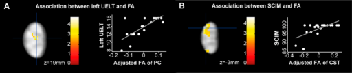 Associations between tract-specific microstructural readouts and clinical outcome above stenosis in patients with CSM.(A,B) Overlay of statistical parametric maps (p < 0.01 uncorrected, shown for descriptive purposes, masked by the lateral corticospinal tract (CST) and posterior columns (PC), respectively) revealing associations between DTI indices and clinical outcome (left panel) between cervical level C2 and C3 (see Fig. 2A for reference). Colour bars indicate t-values. The right panels illustrate the corresponding regression models extracted from the peak-voxel within the significant cluster. Diffusivity parameters of the correlations are mean centered and adjusted for age. In particularly, (A) lower fractional anisotropy (FA) in left PC was associated with worse left ISNCSCI upper extremity light-touch score (UELT) and (B) lower FA in the left lateral CST was associated with lower Spinal Cord Independence Measure (SCIM).