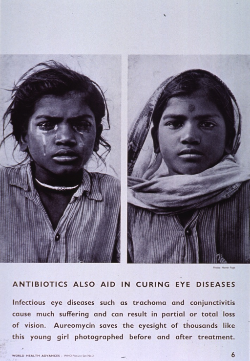 <p>White poster with black lettering.  Upper portion of poster features reproductions of two b&amp;w photos of a young woman.  The woman's eyes are swollen and exude liquid in the left picture.  The woman's eyes are clear in the right picture.  Title below photos, caption below title.  Note in lower left corner.</p>