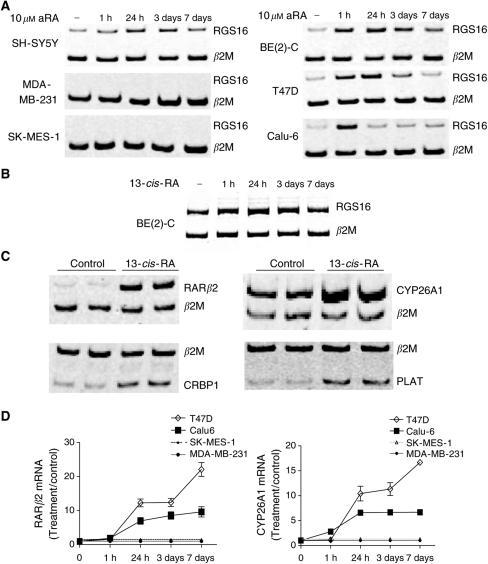 Induction of target gene expression by RA in neuroblastoma (SH-SY5Y, BE(2)-C), lung (SK-MES-1, Calu-6) and breast (MDA-MB-231, T47D) cancer cell lines, and neuroblastoma tissues. cDNA samples from cultured cells treated with 10 μM aRA (A and D), or 13-cis-RA (B) or solvent control at various time points, and duplicate cDNA samples from neuroblastoma arising in MYCN transgenic mice treated with 13-cis-RA or control (C) were subjected to independent competitive RT–PCR analyses using trans-intron PCR primers, together with housekeeping gene β2M primers. An equal aliquot of PCR product was then electrophoretically size-fractionated on a polyacrylamide gel as shown (A, B and C). Fold induction of a target gene by RA in RA-treated samples was calculated by ascribing the ratio between the level of expression of a target gene and that of β2M as 1.0 for control-treated samples (D).