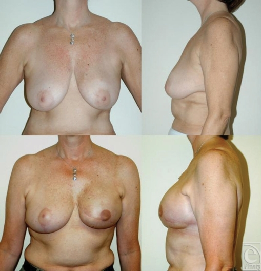 Immediate left-sided tissue expander-implant reconstruction following                        mastectomy and postoperative radiation. This 50-year-old woman received                        radiation 3 months after immediate tissue expander reconstruction. She                        subsequently underwent implant exchange and nipple construction and is shown                        1 year following radiation.