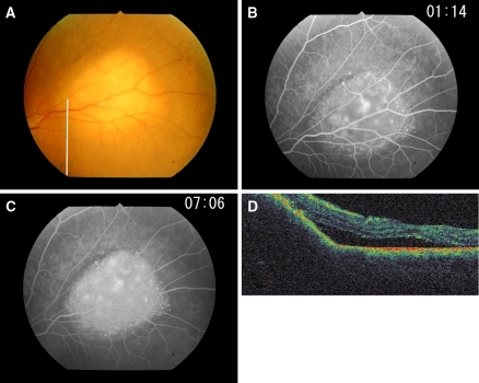 Ophthalmic findings in case 2. (a) Left fundus shows a creamy choroidal tumor superior to the macula. (b, c) Fluorescein angiograms showing granular hyperfluorescence along the margin of the tumor; late phase (c) shows diffuse hyperfluorescence. (d) Optical coherence tomographic scan along the line in (a), showing a dome-like elevation of the retina and RPE–choriocapillaris complex and surrounding retinal detachment