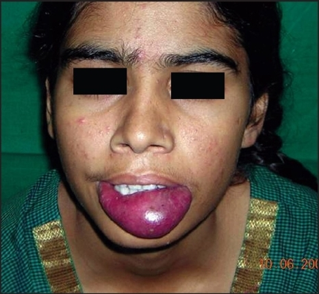 Too big Arteriovenous malformation facial thats what