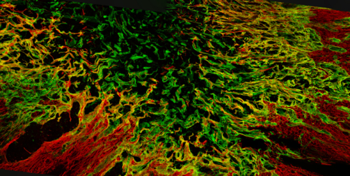 Confocal image of a fibrotic scar, a major obstacle to axon regeneration, in a lesioned rat spinal cord. Image provided courtesy of F. Hellal and F. Bradke, Max Planck Institute of Neurobiology.