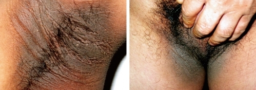 Thickened Hyperpigmented Skin Lesions Acanthosis Nigricans Were Observed On The Posterior Neck