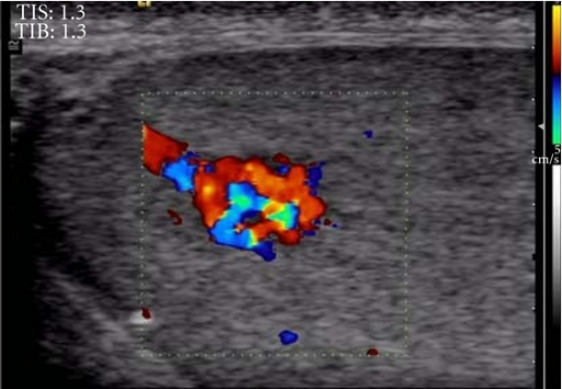 Color Doppler ultrasound demonstrates prominent vessels that entirely involve the mass.