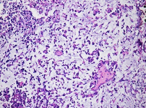 The high magnification, urothelial carcinoma composed of individual cells anf irregular agregates associated with myxoid stroma.