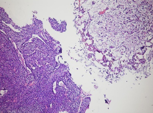 The high magnification, inverted urothelial papilloma and carcinomas mass.