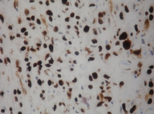 Urothelial carcinoma with abondant myxoid stroma diffuse nuclear p63 immunoreactivity.