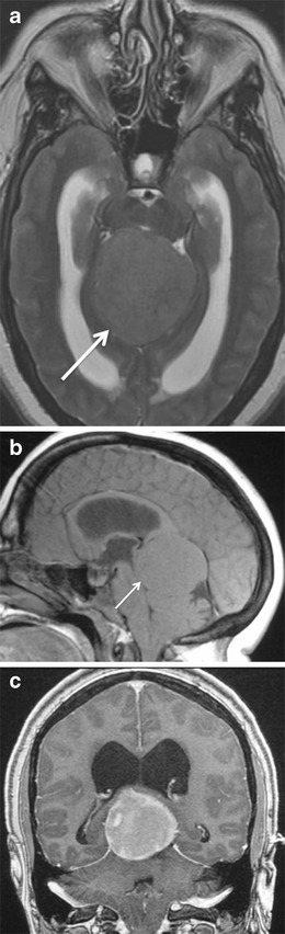 Tentorial meningioma in a 45-year-old woman with papilloedema. A meningioma (arrow) is seen involving the tentorium which extends into the pineal recess. The lesion is isointense to grey matter on axial T2-weighted image (a) and sagittal T1-weighted image (b) and shows prominent contrast enhancement on coronal T1-weighted image (c)