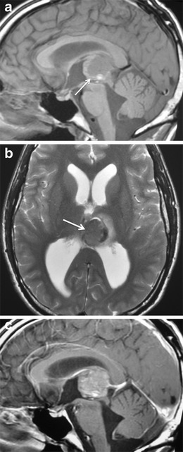 Primitive neuroectodermal tumour (PNET) involving the pineal gland in a 3-year-old boy. Well-circumscribed, tumour arising from the pineal gland (arrow), which has mostly intermediate signal as well as high signal foci on sagittal T1-weighted image (a) and intermediate, low and high signal on axial T2-weighted image (b). The pineal tumour demonstrates heterogeneous contrast enhancement on sagittal T1-weighted image (c). The tumour causes obstructive hydrocephalus by exerting localised mass effect and compression of the quadrigeminal plate, cerebral aqueduct and third ventricle