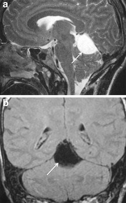 Arachnoid cyst in a 27-year-old woman with headache and dizziness. Sagittal T2-weighted image (a) demonstrates a cystic infratentorial lesion (arrow) in the pineal recess, which has high signal. On coronal FLAIR image (b), the lesion (arrow) has isointense signal relative to CSF