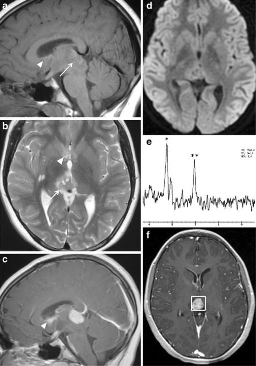 Germinoma in a 12-month-old girl. Poorly-lobulated mass arising from the pineal gland (arrow), which has intermediate to high signal on sagittal T1-weighted image (a) and axial T2-weighted image (b), and shows contrast enhancement on sagittal T1-weighted image (c). Disseminated tumour (arrowhead) is also seen in the lateral and third ventricles with prominent enhancement. The tumour shows no restricted diffusion (d). MR spectroscopy at 1.5 T using a single voxel (2 × 2 × 2 cm3) acquisition with PRESS demonstrates elevated choline peak (*) and slightly decreased NAA peak (**) (e). Corresponding T1-weighted image post contrast shows the location of the voxel around the lesion (f)